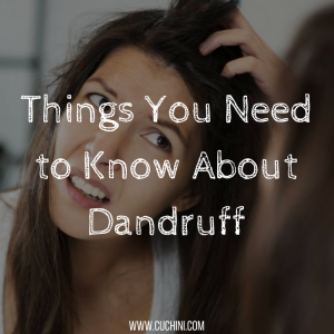 Things you need to know about dandruff